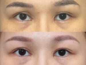 眼瞼下垂手術(他院修正)