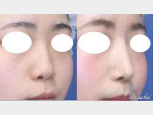 鼻尖縮小術(ストラット法)